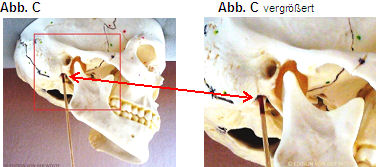 austritt nervus facialis